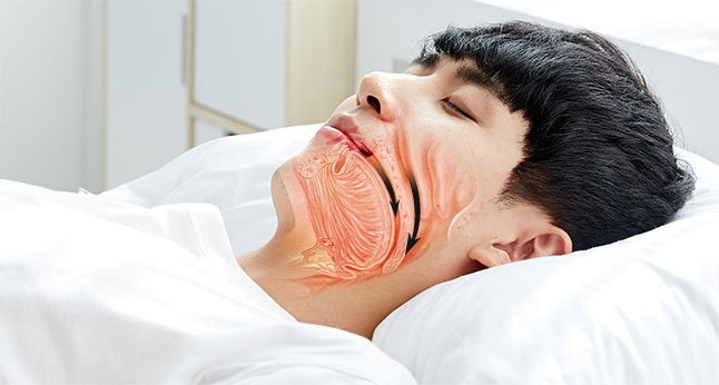 cpap 사용 전